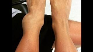 Ankle Lock Injury Rehab