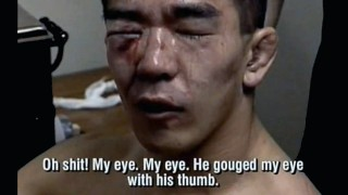 Giant Slayer Yuki Nakai – 3 fights in 1 night!! (Gets blinded for life)