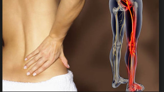 How to Relieve Your Sciatica Pain When Sitting-3 Fast Options -Herniated or Bulging Disc Problems